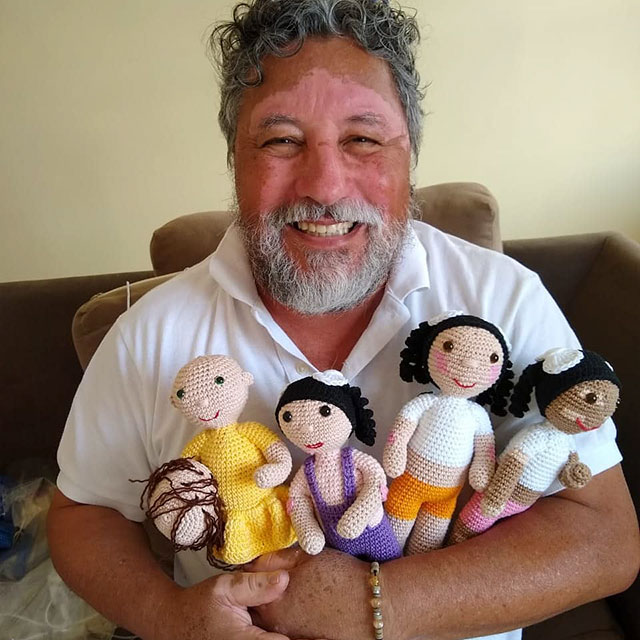 heartwarming story of grandfather who crotchets dolls with vitiligo